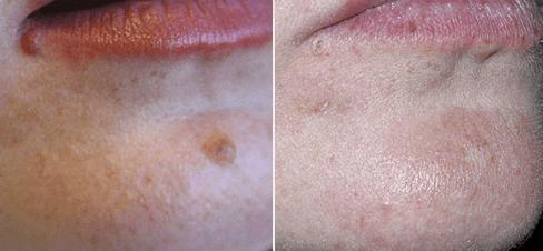 dermatolog_06