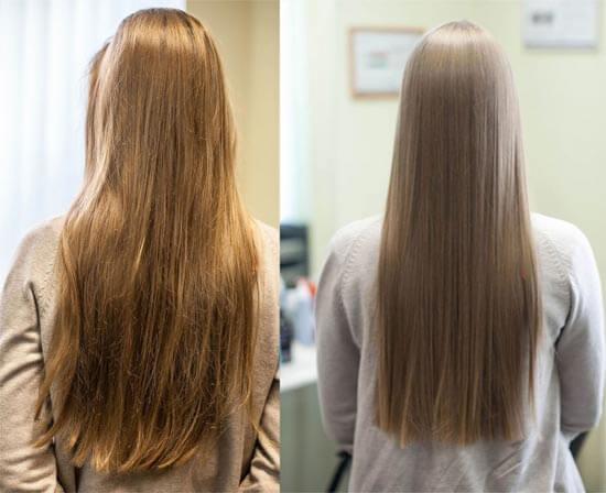 Мезотерапия волос Позняки