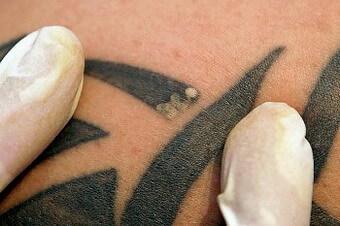 Удаление татуировок Позняки