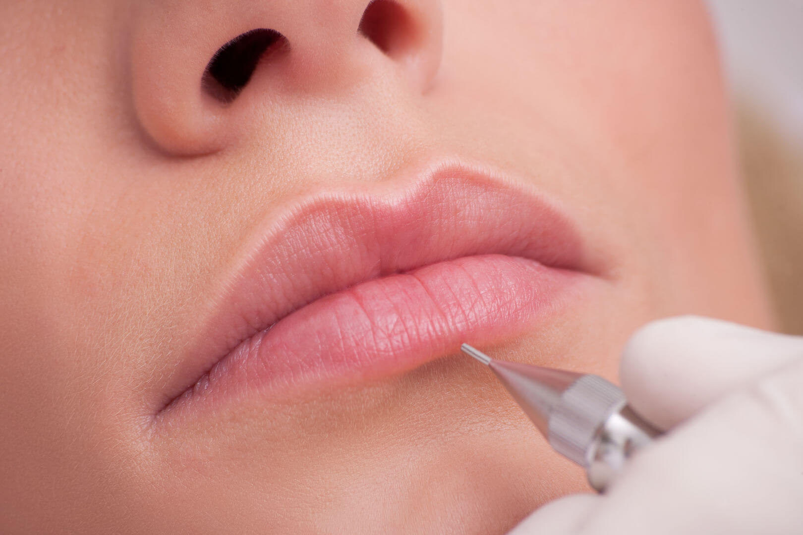 коррекция губ киев