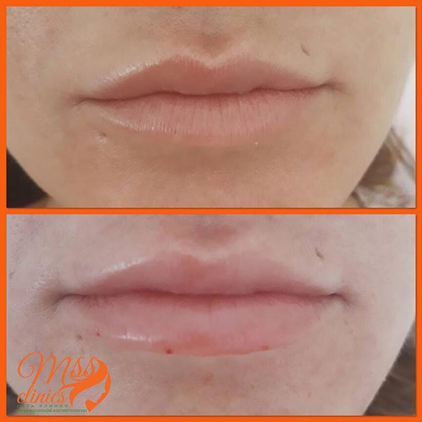 Естественное увеличение губ