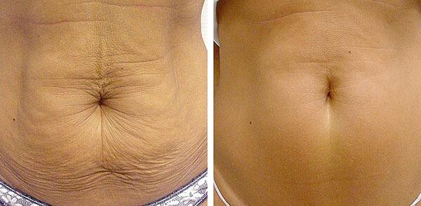 Липолитики для похудения